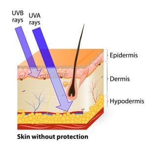 Diagram of skin layers and effect of UVB and UVA rays